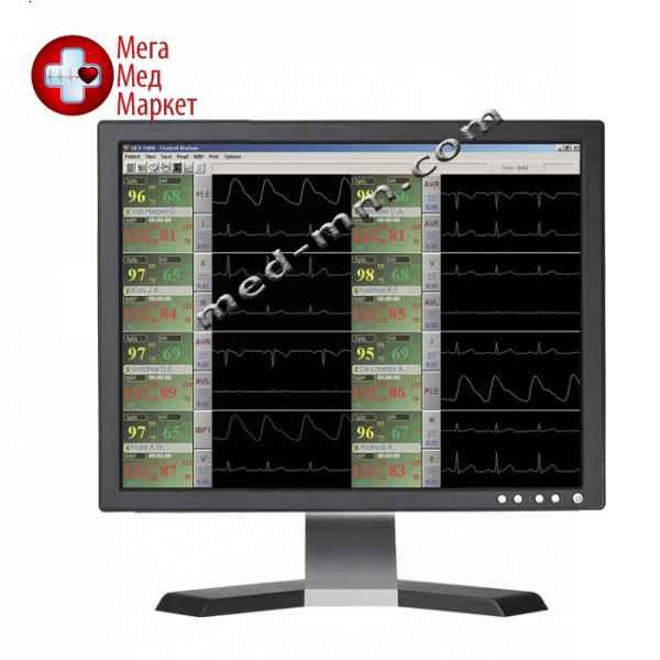 Купить Монитор пациента UCS 1000 цена, характеристики, отзывы